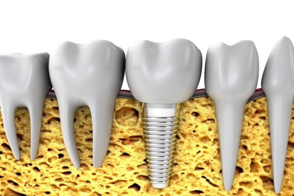 Implantólogos en Margarita - Periodoncistas y Endodoncistas